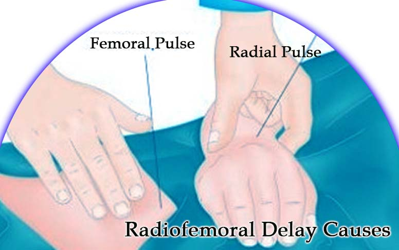 Causes of Radiofemoral Delay